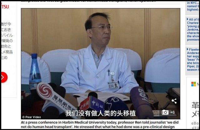 【世界初】人間の頭部移植に成功か!? 中国人の首をすげ替え… カナベーロ博士が衝撃会見「生きた犬も成功」「次は脳移植」の画像3