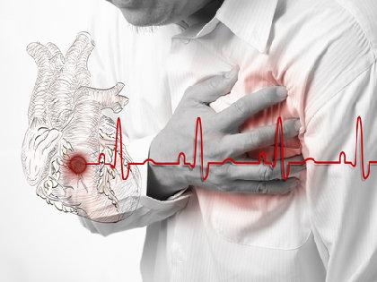 heartshock0202.jpg