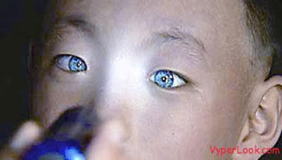 「光る目」を持つ中国人少年  暗闇で物が見える特殊能力に、眼科医も驚愕の画像1