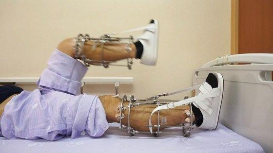 leglengtheningsurgery1.JPG