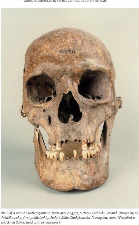「フォーブス」も取り上げた中世の女巨人の骸骨とは? 手足が折り曲げられた状態で埋葬!=ポーランドの画像1