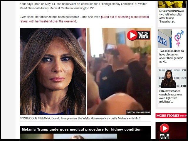 【衝撃】メラニア・トランプ大統領夫人にクローン説が浮上!「あれはメラニーという別人の影武者」「昔と顔が違う」の画像1