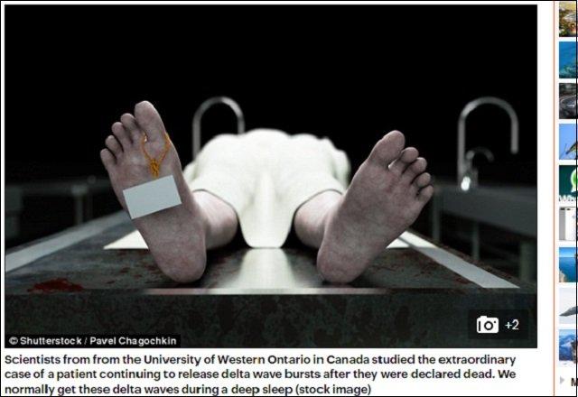 【ガチ】人が死んだ後に生きる謎の10分間があった! 研究者「説明不可能な事態」の画像1
