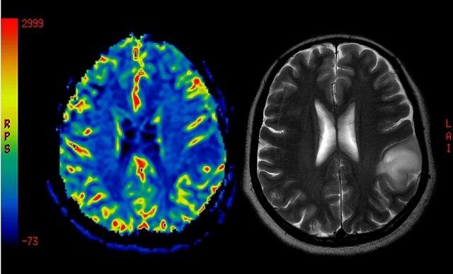【科学】鼻呼吸と口呼吸、脳への影響に圧倒的な差があることが判明! 記憶力から寿命、顔も激変!の画像3