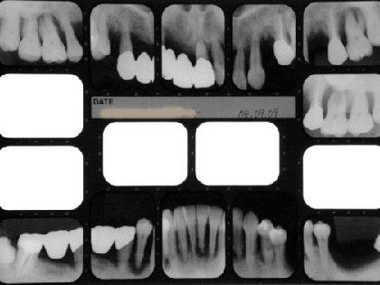 インプラント治療で失敗しない! 良心的な歯科医を見分けるポイントの画像1
