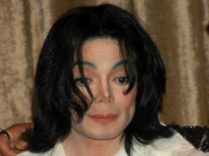 マイケル・ジャクソンも悩まされた皮膚病「白斑(尋常性白斑)」は治せる時代にの画像1