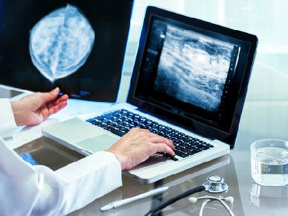 乳がんは手術しなくてもいい!? 人工知能が「高リスク病変」のがん化を97%の精度で予測の画像1