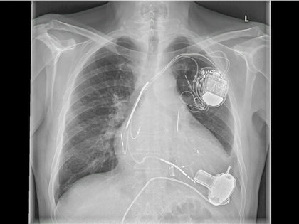new_pacemaker0321.jpg
