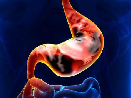 ピロリ除菌で使われる胃薬PPIで、実は胃がんリスクが上昇するという矛盾! の画像1