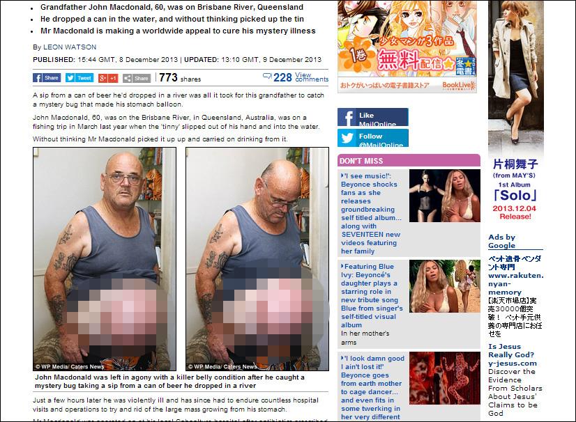 腹が風船のように膨らみ続ける男 4回手術するも、原因不明=オーストラリアの画像1