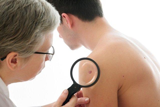【悲報】ペニスが曲がっている男は超・危険だった! 米医大が衝撃発表「リスク高いペロニー病かも。今すぐ検査しろ」の画像2