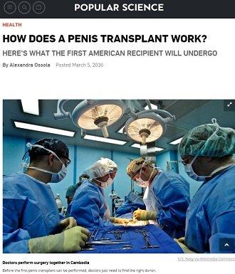 penistransplant1.JPG