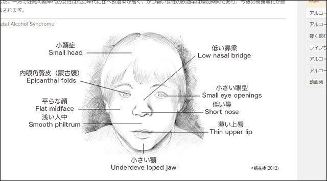 【ガチ】妊娠中の少量飲酒で新生児の顔が激変することが判明、こんな顔になる! 鼻が低く、小頭で小さい目に…の画像2
