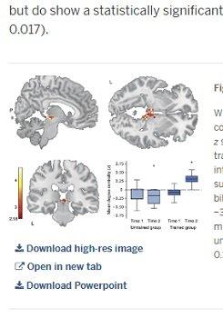 読書で脳が物理的に激変することが科学で判明! 大人でも有効、別人へと変身できる可能性(最新研究)の画像3