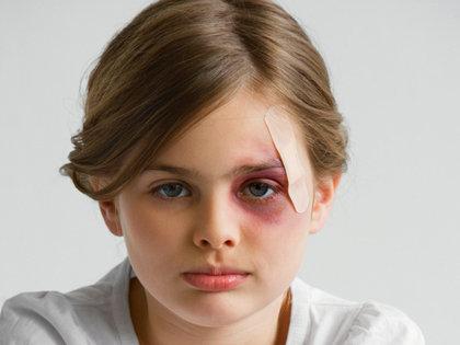 母親らの虐待で食事与えられず、排泄物まみれで死亡した10才少年!殴る・蹴る・性的暴行…なぜ見過ごされた?=米国の画像1