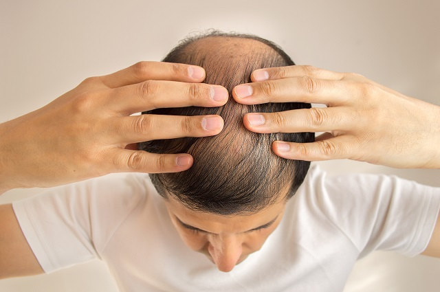 【速報】髪の毛にも「嗅覚」があることが新判明! アノ匂いを髪に嗅がせてハゲ改善できることも!(最新研究)の画像2
