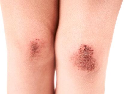 「オキシドール」が傷の治りを遅らせる~消毒薬が細胞を破壊するの画像1