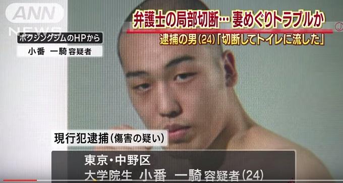 慶応大学院生「弁護士男性器切断事件」が海外でも話題に! 男性器切断にまつわる色々の画像1