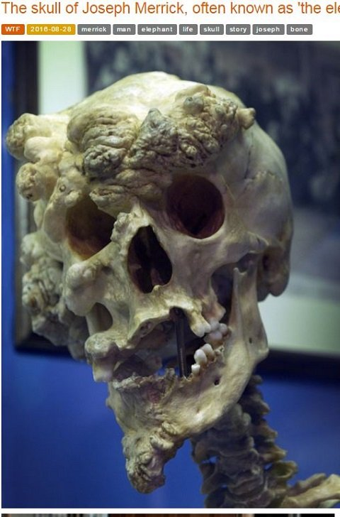 skullofelephantman1.JPG