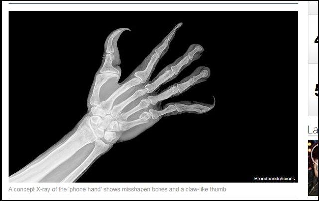 【衝撃画像】スマホの影響で人間の手が超絶キモイ形に変化していくことが判明! 吸盤、指の湾曲…衝撃の進化!の画像3