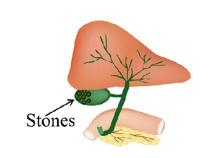 黒い小石が体内にビッシリ…三大激痛の一つ「胆石症」の正体とは?の画像1