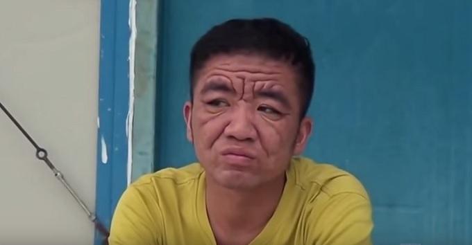 30歳なのに80歳の容姿!男が突然超老け顔になった謎の症状が怖すぎる!!=中国の画像1