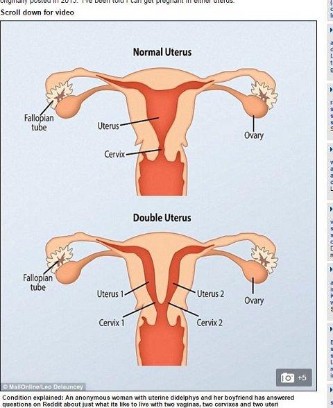 uterusdidelphys1.JPG