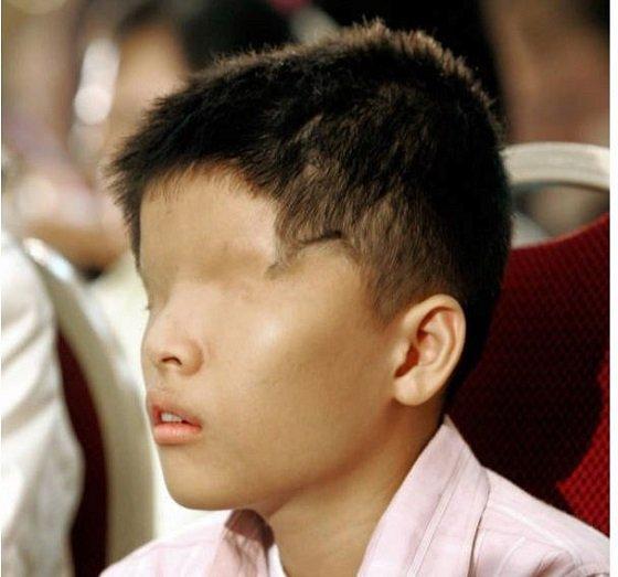 ベトナム「枯葉剤」の被害は終わっていなかった! 今も苦しむ子どもたちの写真6選とモンサント社の大罪の画像5