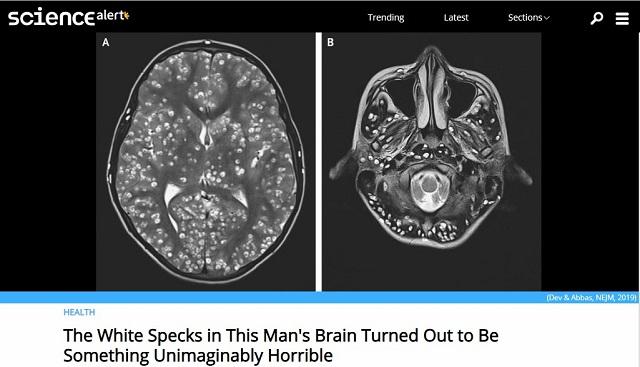 脳味噌がサナダムシで埋め尽くされた男のMRI画像がおぞまし