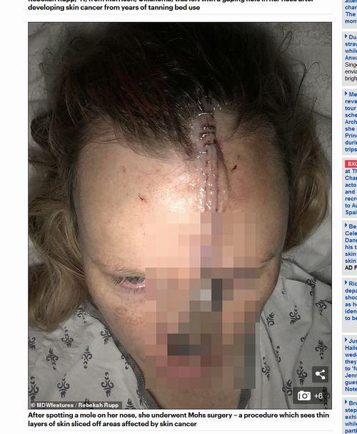 【閲覧注意】日焼けにハマって顔面崩壊した女が本当に悲惨!=米の画像1